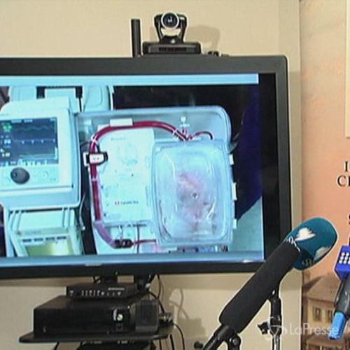 In Australia due trapianti di cuore con organi che avevano ...