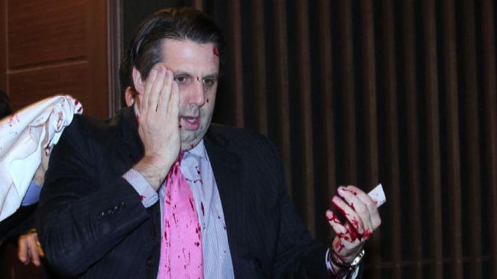 Ambasciatore americano ferito a coltellate in Corea del Sud ...